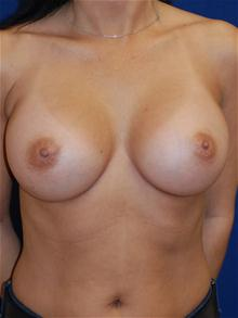Breast Augmentation After Photo by Michael Eisemann, MD; Houston, TX - Case 27677