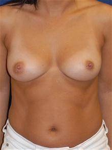 Breast Augmentation Before Photo by Michael Eisemann, MD; Houston, TX - Case 27677