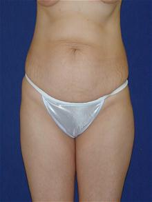 Tummy Tuck Before Photo by Michael Eisemann, MD; Houston, TX - Case 27679