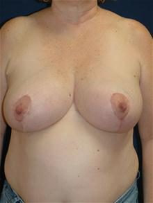 Breast Reduction After Photo by Michael Eisemann, MD; Houston, TX - Case 27685