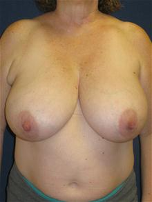 Breast Reduction Before Photo by Michael Eisemann, MD; Houston, TX - Case 27685