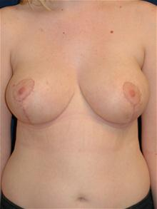Breast Reduction After Photo by Michael Eisemann, MD; Houston, TX - Case 27686