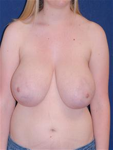 Breast Reduction Before Photo by Michael Eisemann, MD; Houston, TX - Case 27686