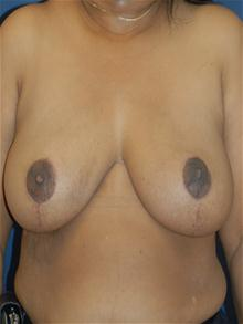 Breast Reduction After Photo by Michael Eisemann, MD; Houston, TX - Case 27687