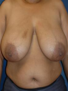 Breast Reduction Before Photo by Michael Eisemann, MD; Houston, TX - Case 27687