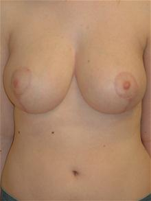 Breast Reduction After Photo by Michael Eisemann, MD; Houston, TX - Case 27688