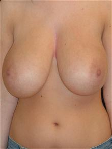 Breast Reduction Before Photo by Michael Eisemann, MD; Houston, TX - Case 27688