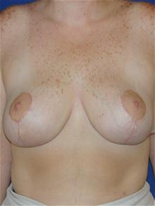 Breast Reduction After Photo by Michael Eisemann, MD; Houston, TX - Case 27689