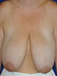 Breast Reduction Before Photo by Michael Eisemann, MD; Houston, TX - Case 27689