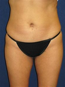 Liposuction After Photo by Michael Eisemann, MD; Houston, TX - Case 27692