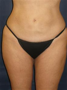 Liposuction After Photo by Michael Eisemann, MD; Houston, TX - Case 27694