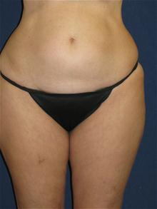 Liposuction Before Photo by Michael Eisemann, MD; Houston, TX - Case 27694