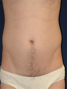 Liposuction After Photo by Michael Eisemann, MD; Houston, TX - Case 27696