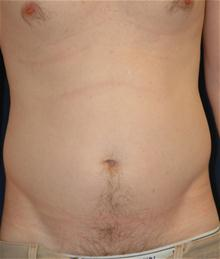 Liposuction Before Photo by Michael Eisemann, MD; Houston, TX - Case 27696