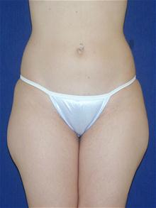 Liposuction Before Photo by Michael Eisemann, MD; Houston, TX - Case 27697