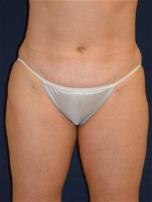 Liposuction After Photo by Michael Eisemann, MD; Houston, TX - Case 27698
