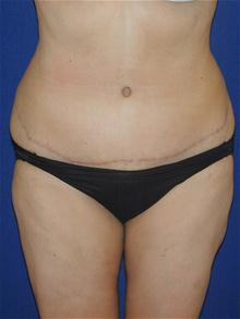 Tummy Tuck After Photo by Michael Eisemann, MD; Houston, TX - Case 27702