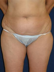 Tummy Tuck Before Photo by Michael Eisemann, MD; Houston, TX - Case 27702