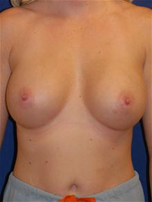 Breast Augmentation After Photo by Michael Eisemann, MD; Houston, TX - Case 27705