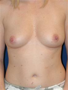 Breast Augmentation Before Photo by Michael Eisemann, MD; Houston, TX - Case 27705