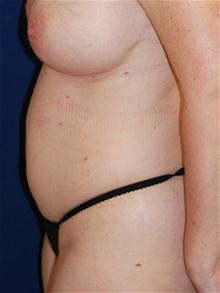 Liposuction Before Photo by Michael Eisemann, MD; Houston, TX - Case 27709
