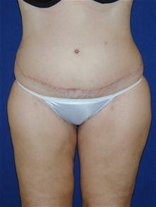 Tummy Tuck After Photo by Michael Eisemann, MD; Houston, TX - Case 27710
