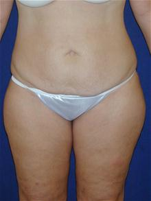 Tummy Tuck Before Photo by Michael Eisemann, MD; Houston, TX - Case 27710
