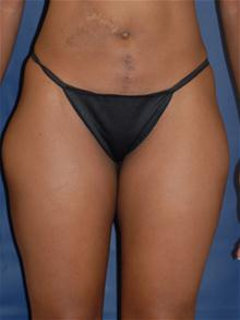 Liposuction After Photo by Michael Eisemann, MD; Houston, TX - Case 27712