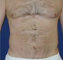 Liposuction After Photo by Michael Eisemann, MD; Houston, TX - Case 27932