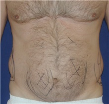 Liposuction Before Photo by Michael Eisemann, MD; Houston, TX - Case 27932