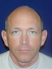 Ear Surgery Before Photo by Michael Eisemann, MD; Houston, TX - Case 27938