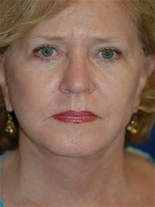 Facelift After Photo by Michael Eisemann, MD; Houston, TX - Case 28473