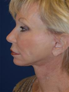 Facelift After Photo by Michael Eisemann, MD; Houston, TX - Case 28474