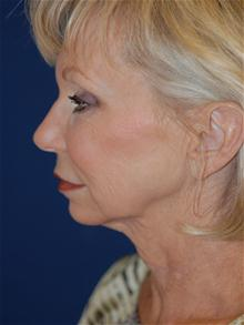 Facelift Before Photo by Michael Eisemann, MD; Houston, TX - Case 28474