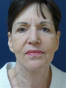 Facelift Before Photo by Michael Eisemann, MD; Houston, TX - Case 28476