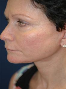 Facelift After Photo by Michael Eisemann, MD; Houston, TX - Case 28477