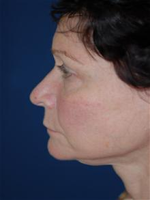 Facelift Before Photo by Michael Eisemann, MD; Houston, TX - Case 28477