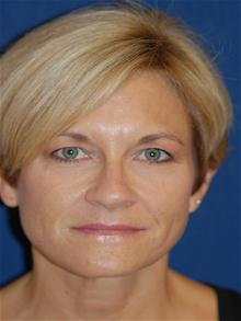 Facelift Before Photo by Michael Eisemann, MD; Houston, TX - Case 28479