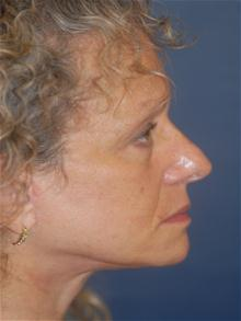 Facelift After Photo by Michael Eisemann, MD; Houston, TX - Case 28480