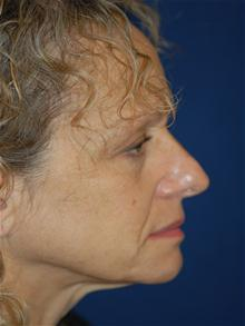 Facelift Before Photo by Michael Eisemann, MD; Houston, TX - Case 28480