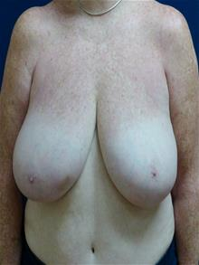 Breast Reduction Before Photo by Michael Eisemann, MD; Houston, TX - Case 28719