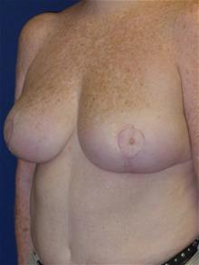 Breast Reduction After Photo by Michael Eisemann, MD; Houston, TX - Case 28719