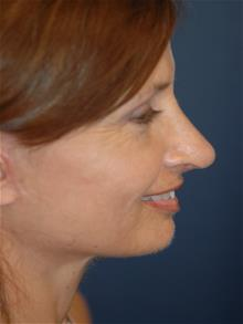 Rhinoplasty After Photo by Michael Eisemann, MD; Houston, TX - Case 28722
