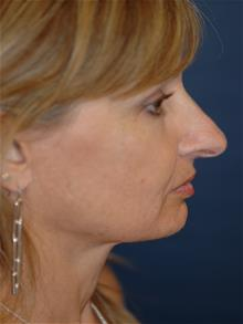 Rhinoplasty Before Photo by Michael Eisemann, MD; Houston, TX - Case 28722
