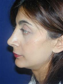 Rhinoplasty After Photo by Michael Eisemann, MD; Houston, TX - Case 28723