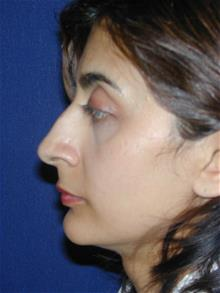 Rhinoplasty Before Photo by Michael Eisemann, MD; Houston, TX - Case 28723