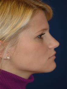 Rhinoplasty After Photo by Michael Eisemann, MD; Houston, TX - Case 28727