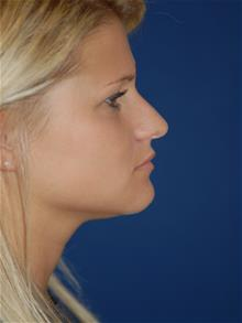 Rhinoplasty Before Photo by Michael Eisemann, MD; Houston, TX - Case 28727