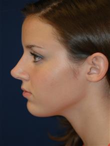 Rhinoplasty After Photo by Michael Eisemann, MD; Houston, TX - Case 28729