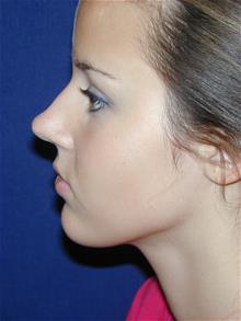 Rhinoplasty Before Photo by Michael Eisemann, MD; Houston, TX - Case 28729
